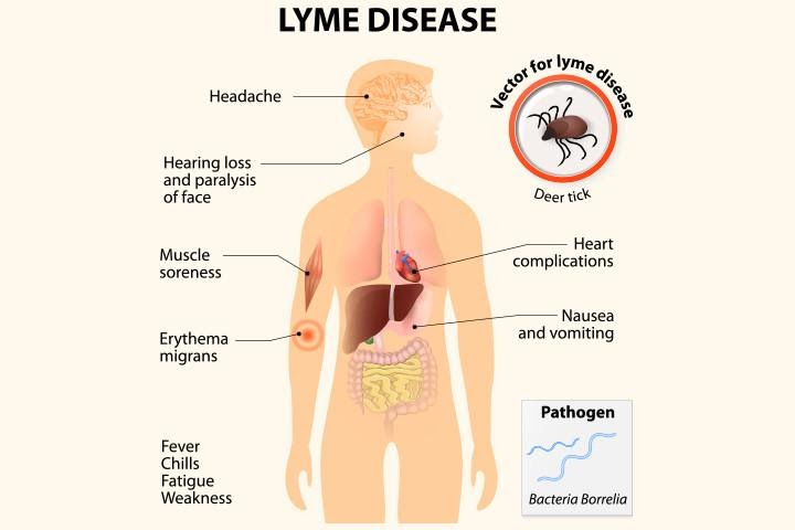 Lyme disease and the dental connection. Lyme bacteria exists in the teeth, not in the enamel. The spirochete bacterium love to occupy in the dentin and some up to three miles of tiny tubules.
