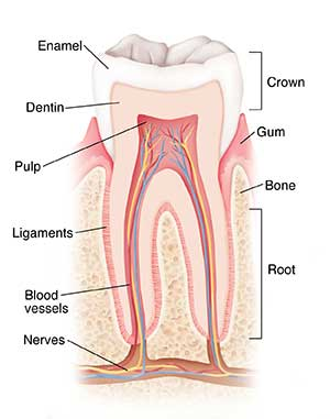 Rantes Score, Infected Root Canal Toxicity, Metal Implants – Chronic Oxidative Stress Of Dental/Oral Origin.
